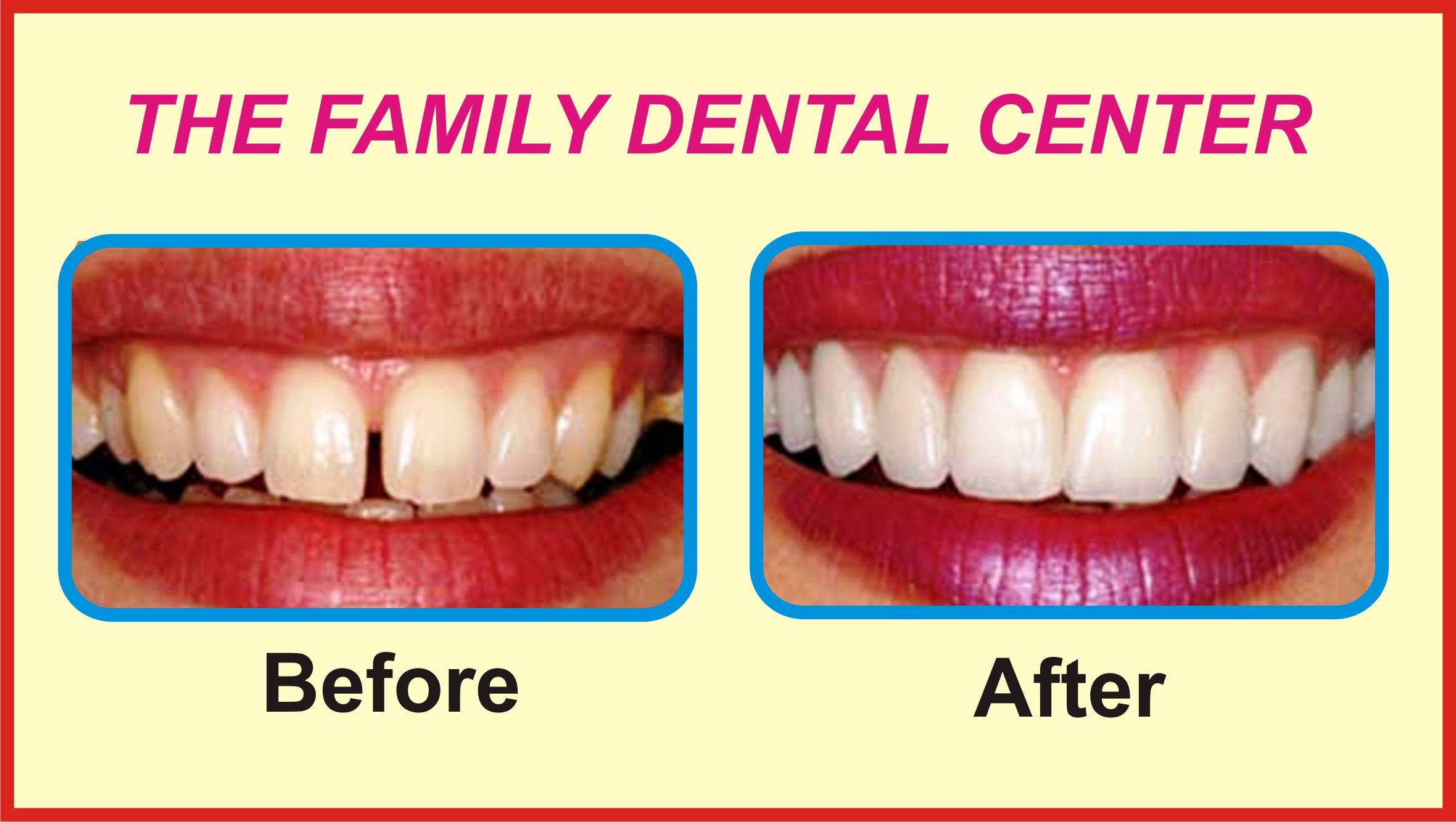 contact the family dental center